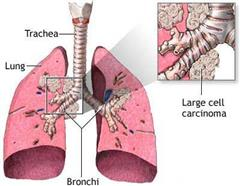 Lung Cancer : A Case Study