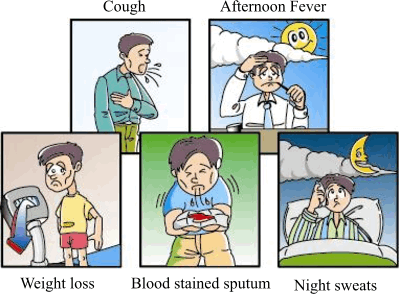 Symptoms and Signs of TB